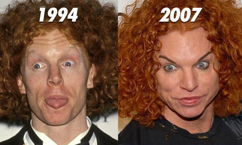 Celebrity Plastic Surgery Disasters? - Photo 1 - Pictures ...