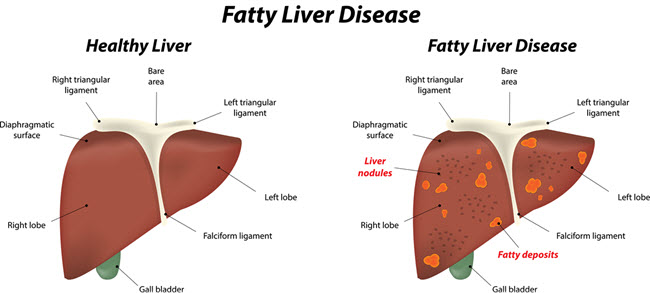 Fatty Liver Disease.