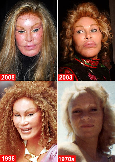 http://www.onlinenursingdegrees.org/images/jocelyn-wildenstein.jpg
